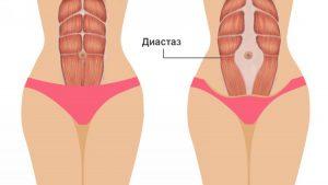 диастаз мышц
